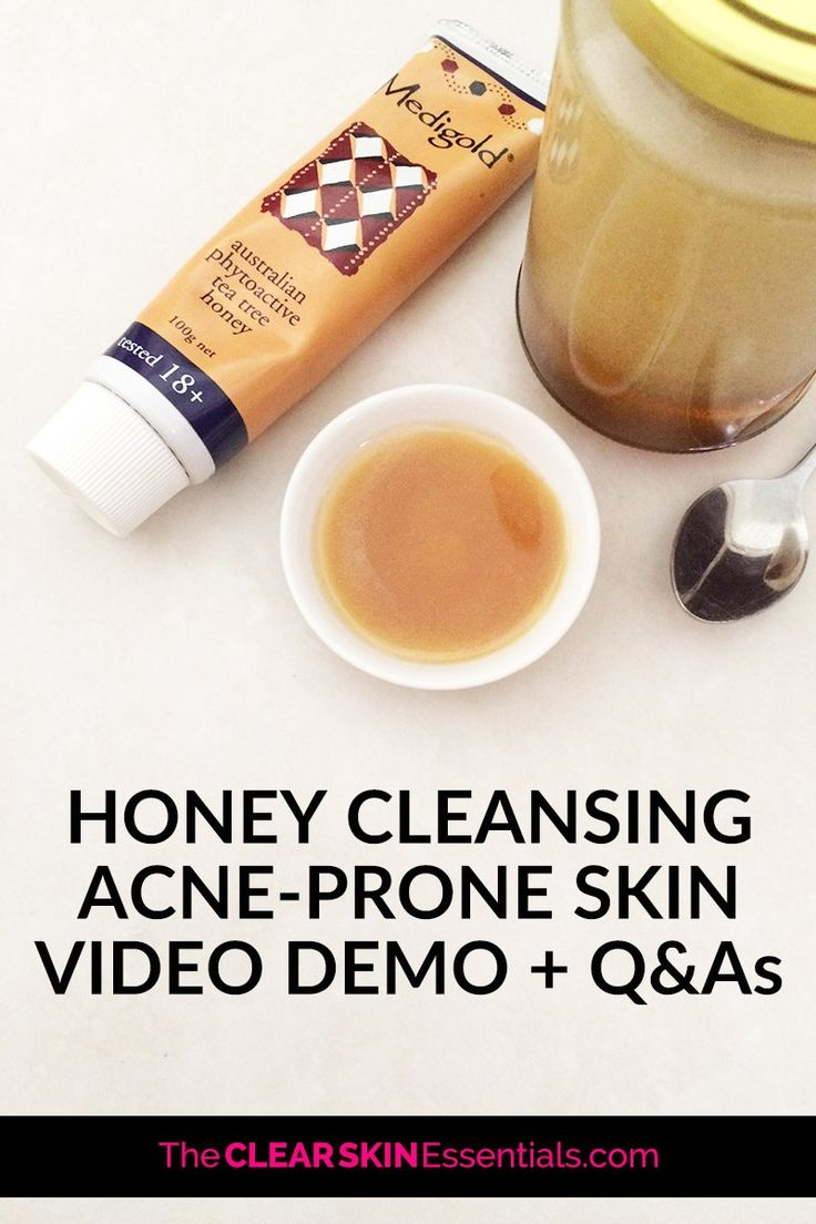 Honey Cleansing Acne Prone Skin + Video Demo And Q&As