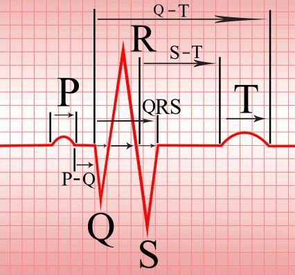 Introduction to ECG - Online 12-lead ECG Interpretation ...