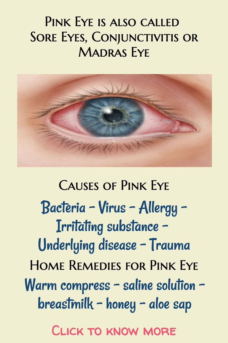 The 25 Best Common Eye Problems Ideas On Pinterest What