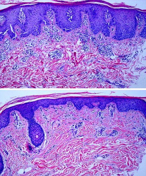 Histologische Färbung von Hautgewebe; Histologische Schnitte von Gewebeproben aus betroffenen Hautbereichen von Schuppenflechte-Patienten vor (oben) und nach der Therapie (unten) mit IL-4.