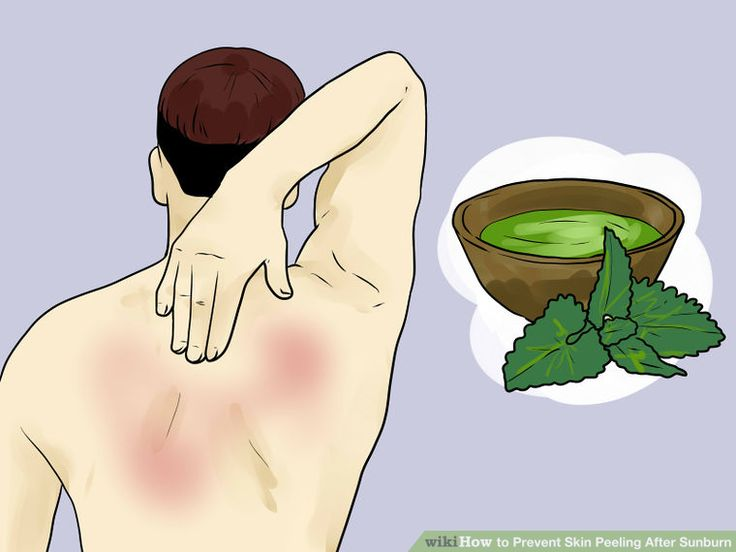 Image titled Prevent Skin Peeling After Sunburn Step 10