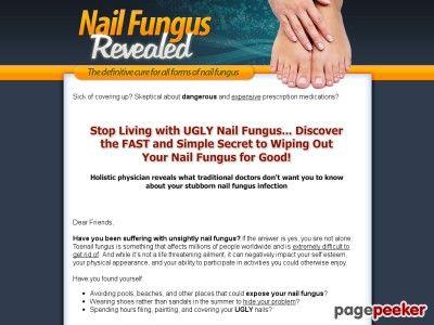 Cool Toenail Fungus Treatment | Nail Fungus Revealed