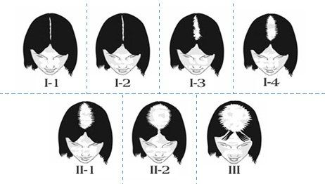 alopécie androgénique féminine