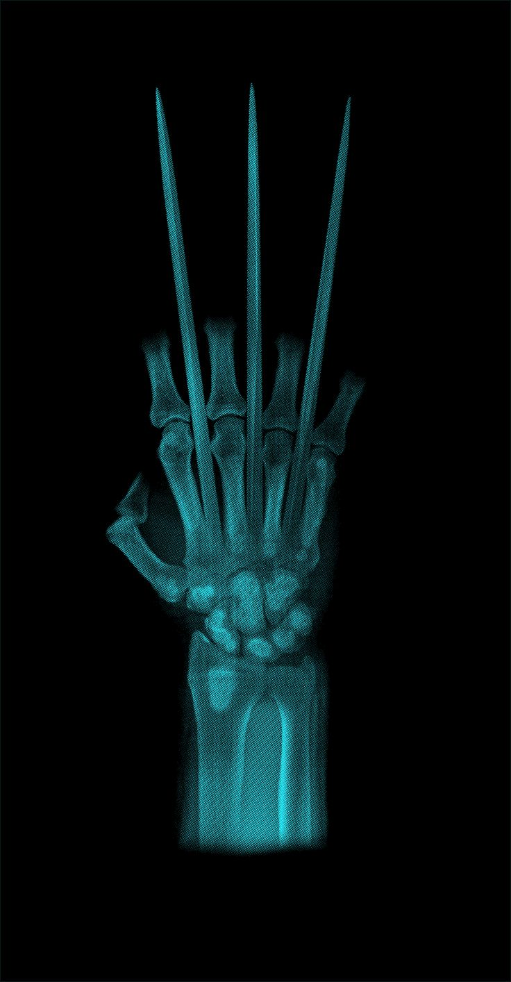 Wolverine . . . But shouldn't the x-ray be able to see through the adamantium? I mean, he does have bone claws under there. Either way: it looks awesome!