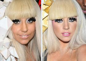 Chatter Busy: Lady Gaga Plastic Surgery