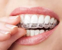 Dental bleaching has now becoming very popular among the people. It can be done with the help of dentist or can be done using home products. Dental bleaching usually has different degree of success at whitening your teeth.   #Dental bleaching