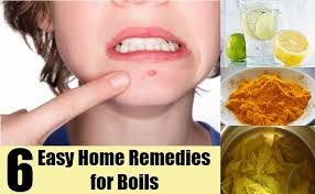 https://www.youtube.com/channel/UC-Cj9DC-t-HVTtH1_1zcO8w  Having trouble getting rid of your skin boils at home? Check out these proven home remedies for boils