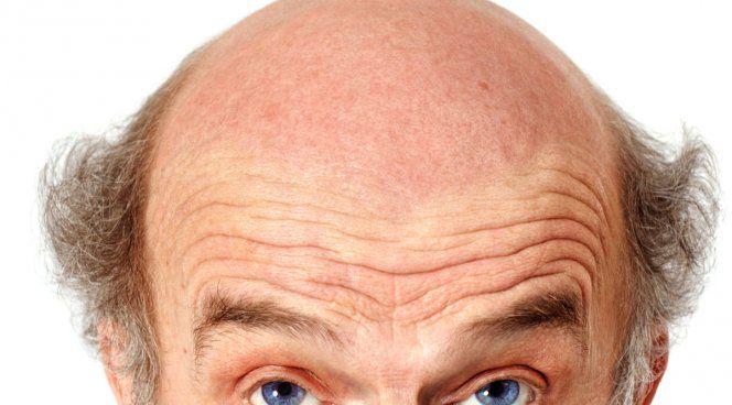 Низкорослые мужчины лысеют чаще высоких - http://jaibolit.ru/nizkoroslye-muzhchiny-lyseyut-chashhe-vysokih/