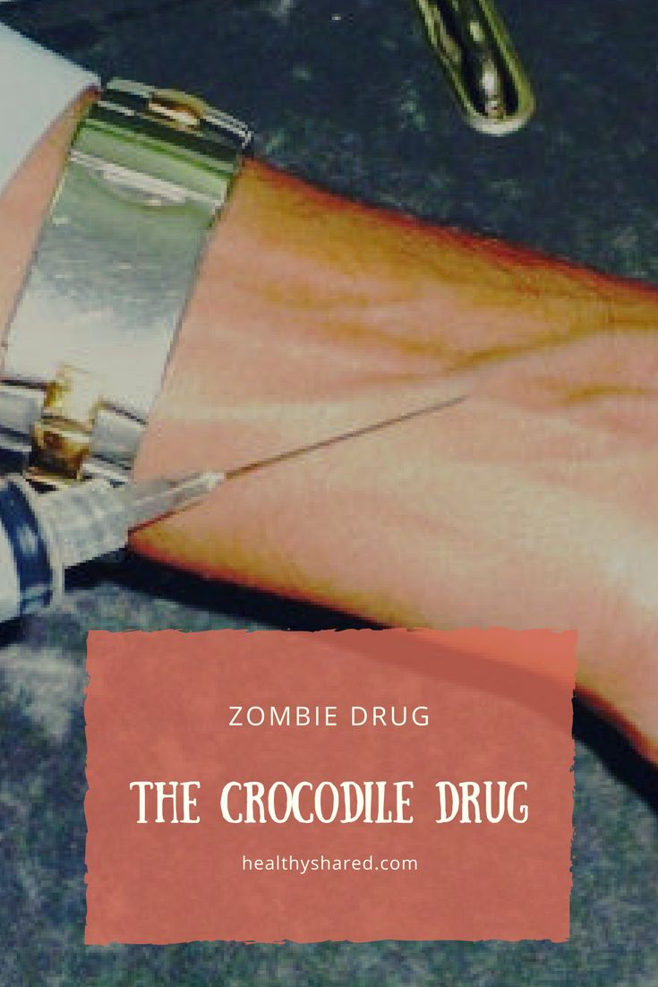 Crocodile drug shocking facts of flesh eating zombie