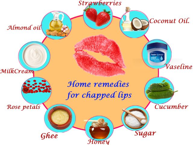 1000 Ideas About Chapped Lips Remedy On Pinterest
