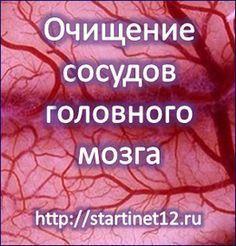 Очищение сосудов головного мозга