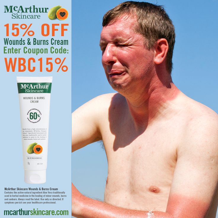 Save 15% OFF Wounds & Burns Cream  Take 15% OFF McArthur Skincare's Wounds & Burns Cream in our online store by entering the coupon code: WBC15% at the final stage of the checkout to receive 15% OFF your order. Not available in conjunction with any other offer. Sale offer expires Midnight (WST) Tuesday 7th February, 2017.  McArthur Skincare – Wounds & Burns Cream  Contains the active natural ingredient Aloe Vera traditionally used in herbal medicine in the healing of minor wounds and burns.