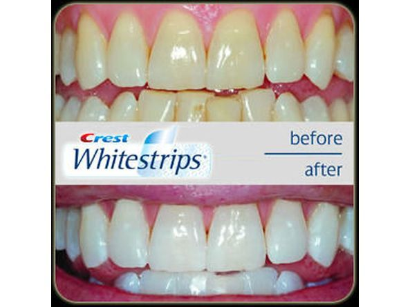 How do Crest 3D White Whitestrips Vivid work?      Crest Whitestrips Vivid is thin, flexible strips that are coated with a tooth whitening gel containing peroxide. Designed to conform to the shape of your teeth, they work by keeping the whitening gel on your teeth for 30 minutes once a day to get at stain build-up on and below the tooth's surface.