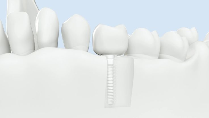 Affordable Dental Implants in Australia