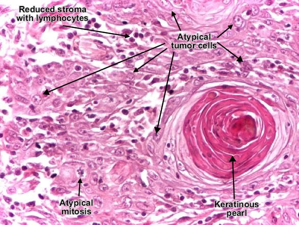 squamous cell carcinoma histology - Google Search ...