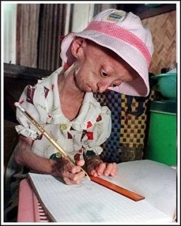 "Laymen have called it the ""aging disease,"" but the correct medical term is Hutchinson-Gilford Progeria Syndrome. The medical community generally refers to it as progeria. The word Progeria comes from the Greek progeros, meaning 'prematurely old'. Progeria is a rare, progressive, genetic disorder causing children to age rapidly."