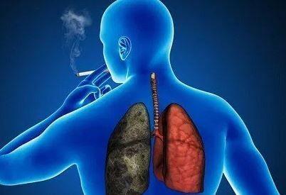 #¡Ojo! No todos los tipos de cáncer de pulmón tienen relación con el tabaquismo - HSB Noticias: HSB Noticias ¡Ojo! No todos los tipos de…