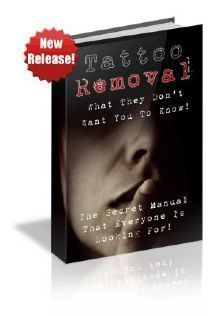 Best Tattoo Removal Methods  for more Detail visit our website: best-tattoo-revi…   – Temporary Tattoo Removal