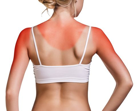 Sunburn symptoms include pink or red skin, skin that's warm to the touch, and pain, itchiness or tenderness.