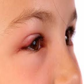 Top 11 Home Remedies for Swollen Eyes