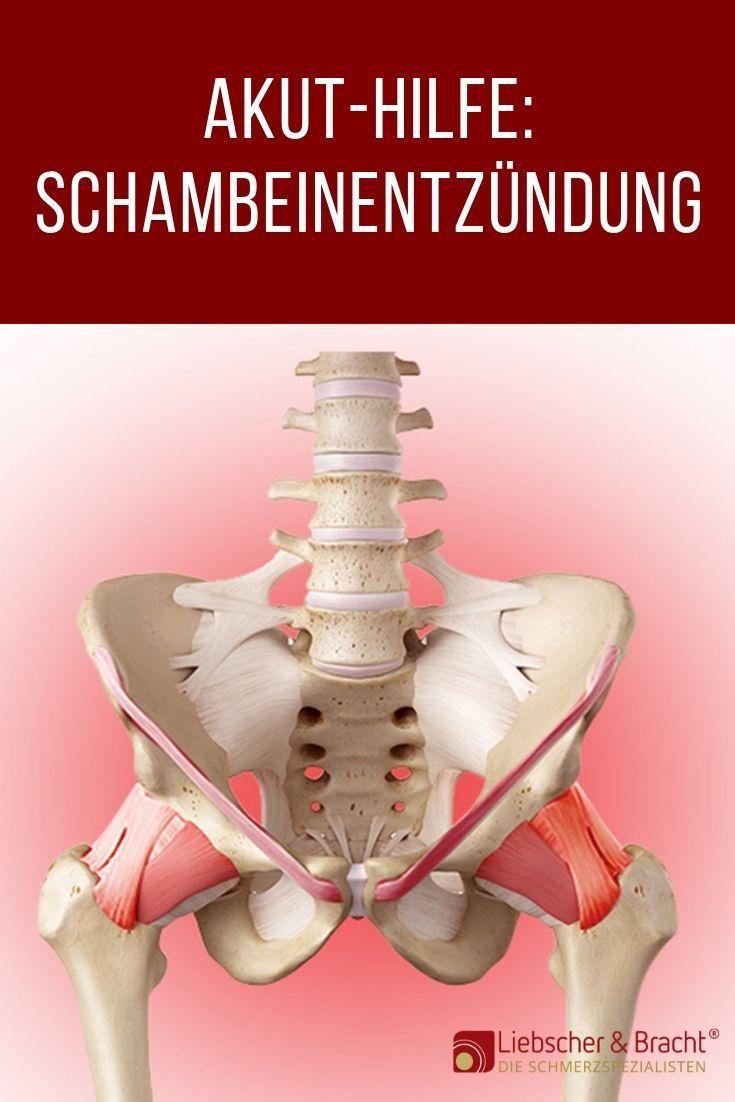 Schambeinentzündung