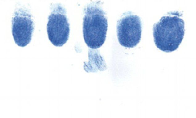 Common chemo drug ERASES cancer patient's fingerprints. Capecitabine causes hand-foot syndrome, where patient's experience redness, swelling, blistering and peeling of skin on the hands and feet In extreme cases the condition can erase a person's fingerprints Patient discovered when she was denied authorisation for bank transaction.