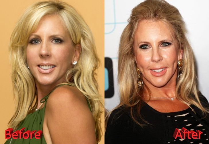 Vicki Gunvalson Before and After Cosmetic Surgery