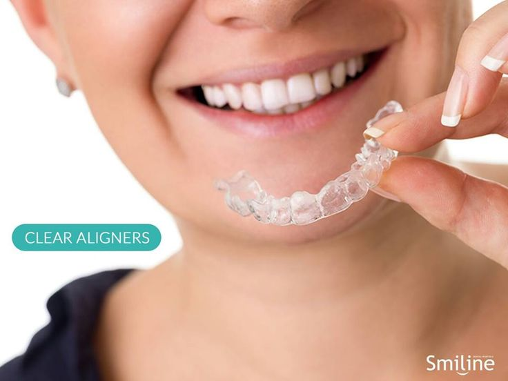 Clear aligners are advanced orthodontic system to traditional braces that uses sequences of individual removable tray to move the teeth in desired position.