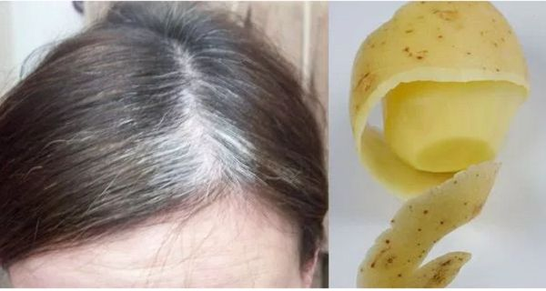 You will not need cosmetic products or expensive hair treatments to get rid of gray hair. Believe us; with these natural ingredients you will have 100% positive results. You will need: 1 cup of potato peel; 2 glasses of water. How to prepare it: pour the water over the peel and place on the stove,…