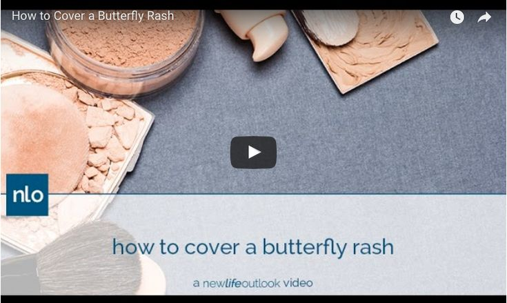 Vlogger Anna Scanlon shares how to use moisturizer, primer and makeup to cover up a lupus-related facial butterfly rash.