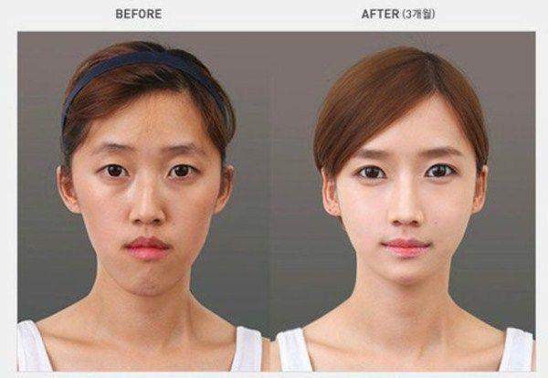 8 Celebrity Plastic Surgery Fail8 Celebrity Plastic Surgery