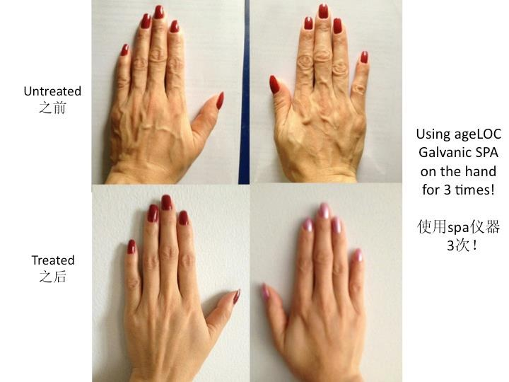 ageloc spa can change how your hands look!!!