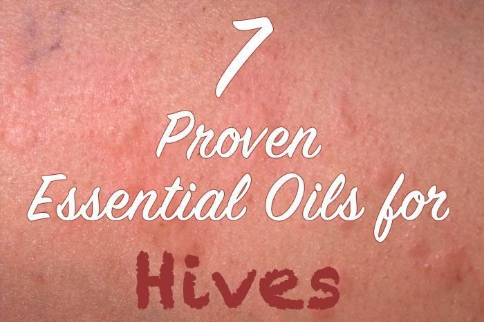 Essential oils for Hives include Tea Tree, Myrrh, Peppermint, Lavender, Lemon and Helichrysum Essential Oil. A blend Oil recipe can help heal hives fast.