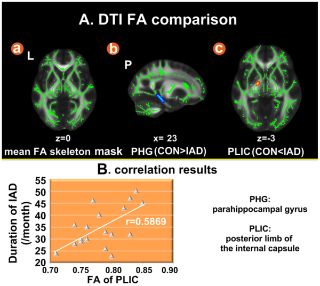 PLOS ONE: Microstructure Abnormalities in Adolescents with Internet Addiction Disorder