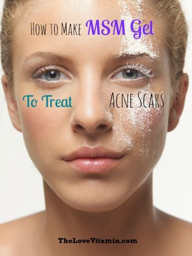 How to Make MSM Gel to Treat Acne Scars & Red Marks | stuff | Acne