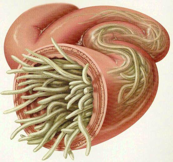 PARAZIȚII care se hrănesc zilnic din tine! Află ce viermi ai și ce legătură au cu cancerul