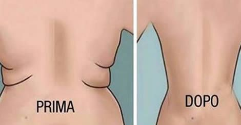 Come eliminare il grasso sulla schiena in 2 settimane