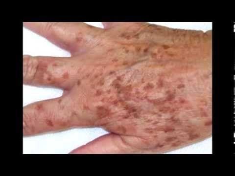 Remedios caseros para las manchas en las manos