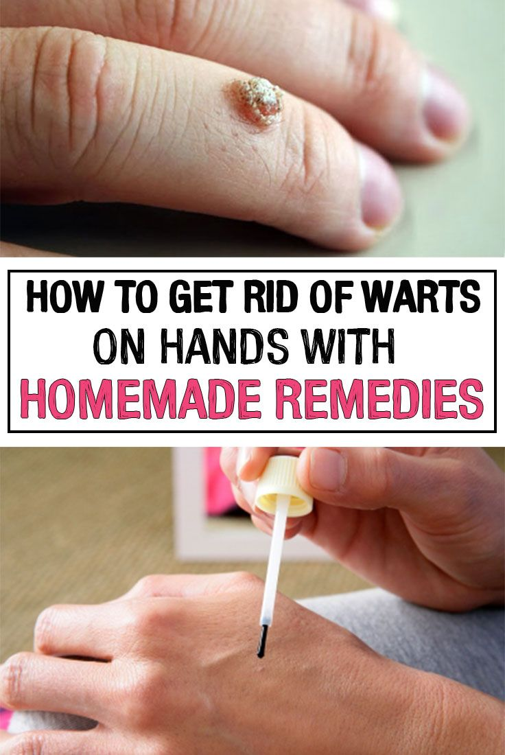 Get Rid Warts Neck Naturally