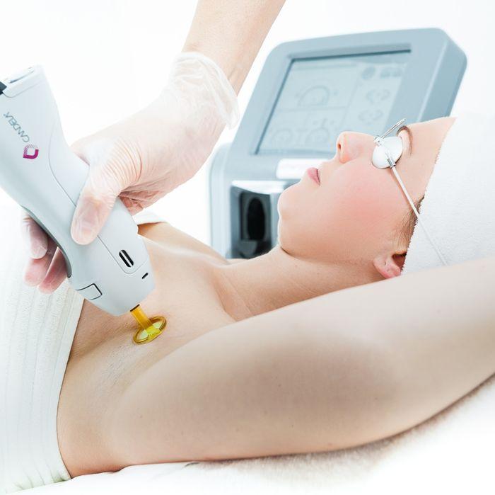 Το Laser Alexandrite® 755nm, είναι σύστημα laser Alexandrite® (755nm) για αποτρίχωση, με FDA έγκριση για μόνιμα αποτελέσματα στην αποτρίχωση permanent hair reduction. www.medicalantiagingcenter.gr