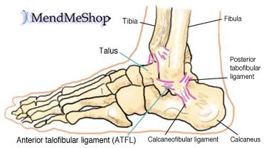 characteristics of ankle sprains Characteristics of the talocrural (ankle) diagnosis of sprained ankle have been observed in the outpatient clinic of the department for orthopaedics and.