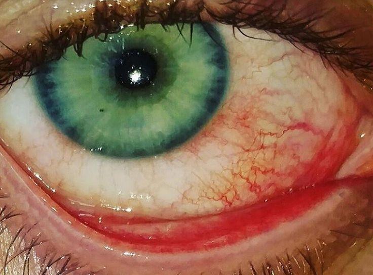 Si Usas Lentes de Contacto, Te Conviene Leer Esto Ahora Mismo  http://www.viralsfera.com/lentes-de-contacto/