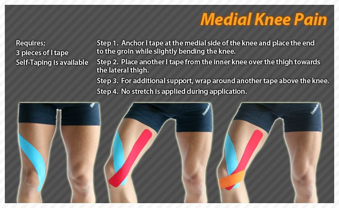 10 best images about Knee on Pinterest | Runners, Knee ...