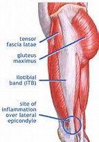 Resultado de imagem para TfL Muscle