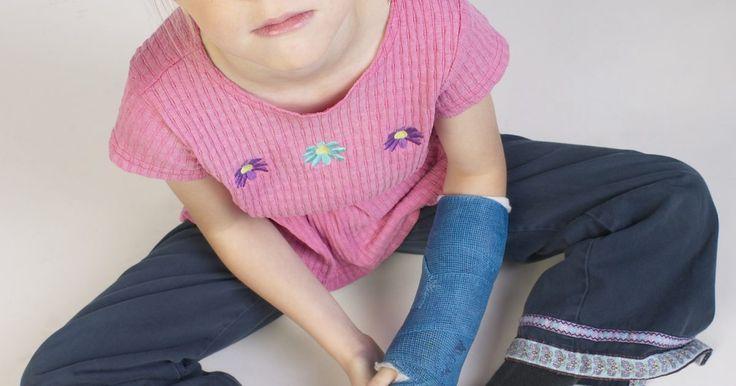 Cómo decorar un yeso en tu brazo. Un yeso en el brazo no tiene que ser la monstruosidad que solía ser. Atrás han quedado los días de la escayola lisa, blanca y con autógrafos borroneados hechos en lápiz. Las empresas ortopédicas ofrecen un montón de opciones creativas para el paciente y los avances en marcadores permanentes significa que puedes expresarte en líneas claras y ...