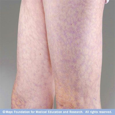 Livedo reticularis - Mayo Clinic. Livedo reticularis is a vascular condition characterized by a mottled, purplish discoloration of the skin, usually on the legs. It may be aggravated by cold exposure.