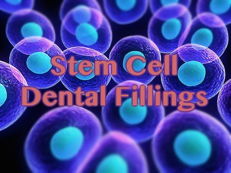 Have you seen the articles on the new #dental fillings that stimulate stem cells? Check out our blog post on how and why they are proposed to work! #ThousandOaksDentist