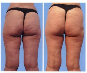 16 best fat removal images on pinterest fat skin clinic and ageing mesotherapy before and after for cellulite dimples with the impending launch of it appears that fat busting injections are back in fashion but a do they solutioingenieria Choice Image