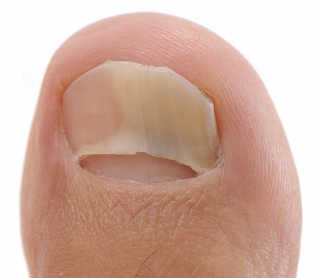 Nail infections are never fun to deal with. They are gross, unattractive, and annoying to get rid of. Some of the signs of a nail infection include pus-filled cuticles or sore, red skin around your nails. The causes can vary,…