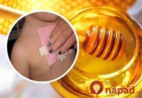 Ako sa zbaviť kašľa a hlienov v pľúcach za jednu noc? Spoznajte prekvapivé účinky medového obkladu!